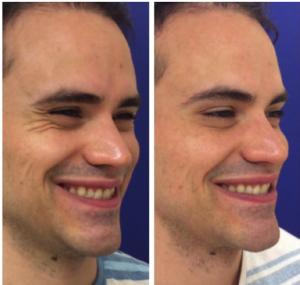 Botox for wrinkles around the eyes (crow's feet).